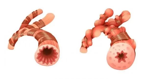 Cấu tạo nhu mô phổi