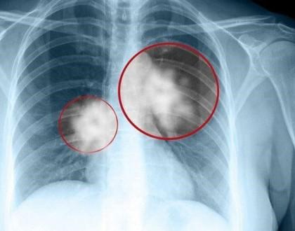 X quang phổi mờ