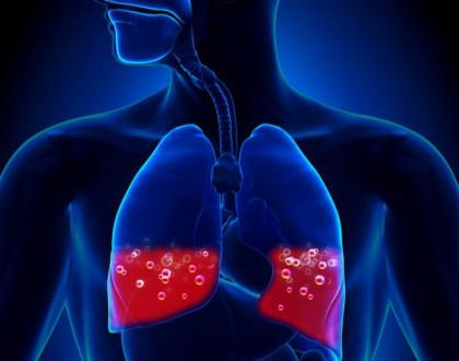 Triệu chứng phù phổi cấp