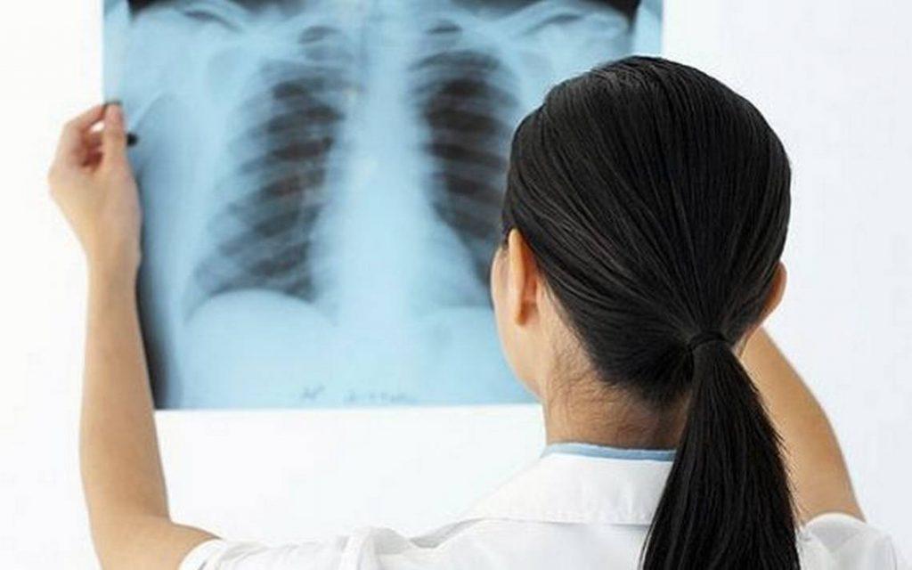 Xơ phổi có chữa được không