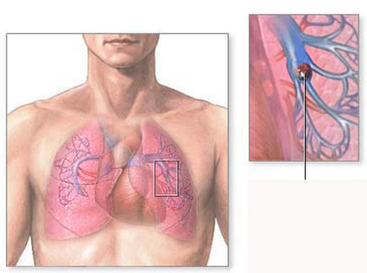 Xơ phổi có nguy hiểm không
