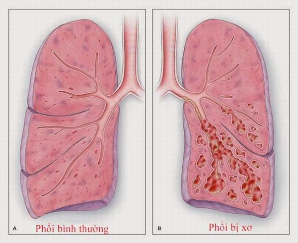 Xơ phổi là gì