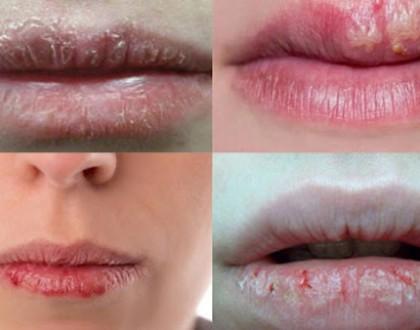 Chàm môi