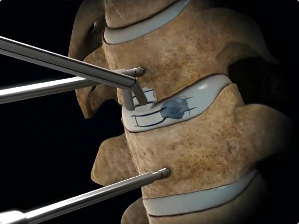 thay đĩa đệm cột sống thắt lưng